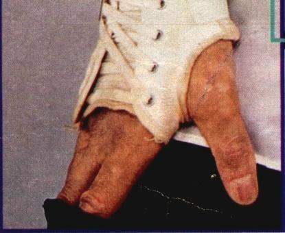 vitiligo_hand.jpg